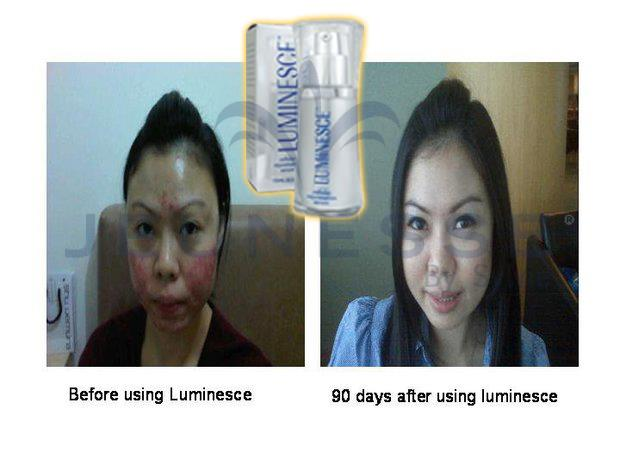 90 Days After using Luminesce