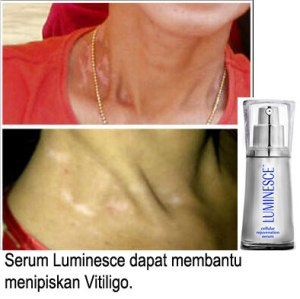 Serum-VS-Vitiligo